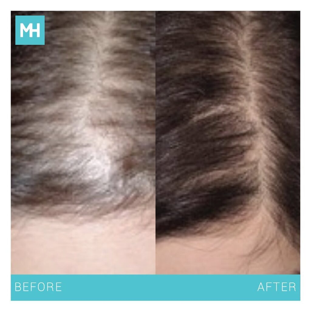 Before After haaruitval - mesohair